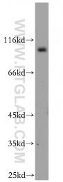 12751-1-AP - EXOC2 / SEC5
