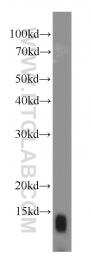 15087-1-AP - SEC61B