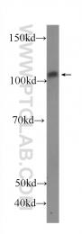 60322-1-Ig - CD62P / P-Selectin