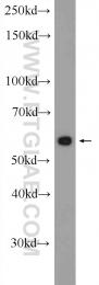 24532-1-AP - Sestrin-3 (SESN3)