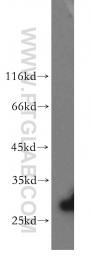 13222-1-AP - SGCA (Alpha-sarcoglycan)