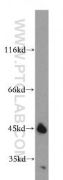 11936-1-AP - SGCB (Beta-sarcoglycan)