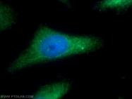12407-1-AP - Epsilon-sarcoglycan / SGCE