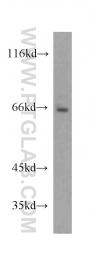 20507-1-AP - NRAMP2 / SLC11A2