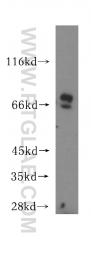 16331-1-AP - SLC22A5
