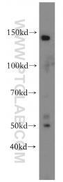14687-1-AP - CD92 / SLC44A1