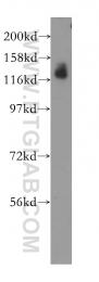 11885-1-AP - SLC4A4 / NBCE1