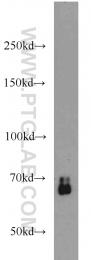 10231-1-AP - SMAD4