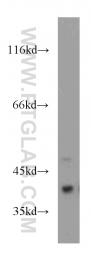 20451-1-AP - SMN1 / SMN2