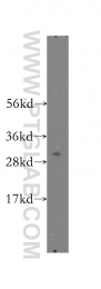 12178-1-AP - SMNDC1