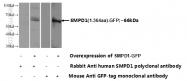 14609-1-AP - SMPD1