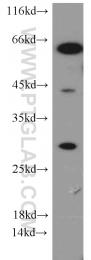 13099-1-AP - SNAI1