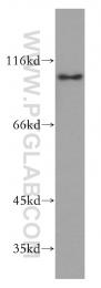 13294-1-AP - Sorting nexin-25 (SNX25)