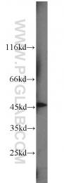 10114-1-AP - Sorting nexin-6 (SNX6)