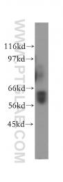 12544-1-AP - Squalene epoxidase / SQLE