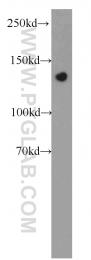 14088-1-AP - SREBF1 / SREBP1