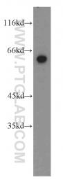 15998-1-AP - STAU2