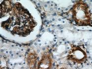10314-1-AP - Stanniocalcin 2 / STC2