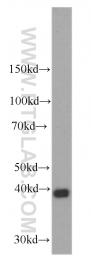 60063-1-Ig - Stanniocalcin 2 / STC2