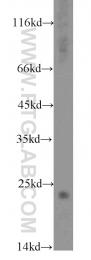 10586-1-AP - Stathmin-2 / STMN2