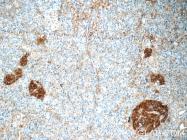 17785-1-AP - Synaptophysin / SYP