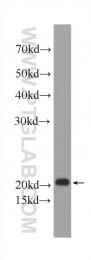 60044-1-Ig - Transgelin-2 (TAGLN2)