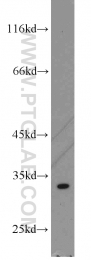 15486-1-AP - Thiamine-triphosphatase (THTPA)