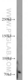 14304-1-AP - TNK2 / ACK1