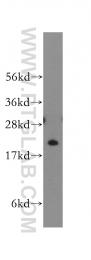 11634-1-AP - Fast skeletal muscle Troponin I