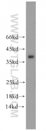 10737-1-AP - Tropomyosin-3 (TPM3)