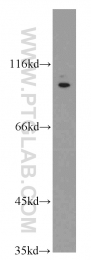 20987-1-AP - TRPV4 / Vanilloid receptor-like protein 2