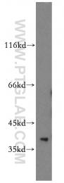 12520-1-AP - TRUB1