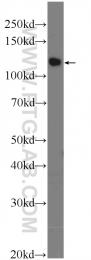 25418-1-AP - TSC22D2