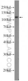 25018-1-AP - TSHZ3 / ZNF537