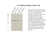 16311-1-AP - Thiosulfate sulfurtransferase (TST)