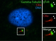 15176-1-AP - TUBG1 / Tubulin gamma 1