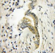 11732-1-AP - Twinfilin-1 (TWF1)