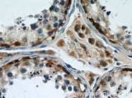 11117-1-AP - Thioredoxin reductase 1 / TXNRD1