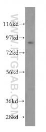 15347-1-AP - SAE2 / UBA2