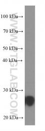 66230-1-Ig - UCHL1 / PGP9.5
