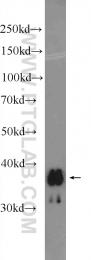 25223-1-AP - SLC25A14 / BMCP1