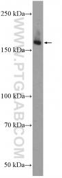 20986-1-AP - ULK1 / ATG1