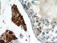 12394-1-AP - Uracil-DNA glycosylase (UNG)
