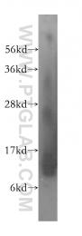 14975-1-AP - UQCRQ