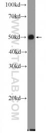 25962-1-AP - SLC14A1