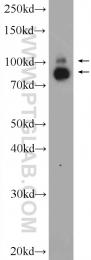 10736-1-AP - TER ATPase / VCP