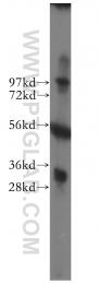 11663-1-AP - VDAC2