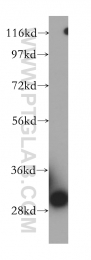 14451-1-AP - VDAC-3