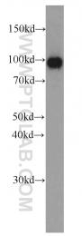 66096-1-Ig - Villin-1