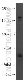 19493-1-AP - VLDL-R / VLDL receptor